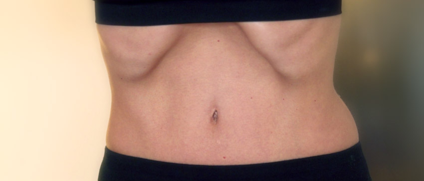 Gimnasia abdominal hipopresiva - Ainara